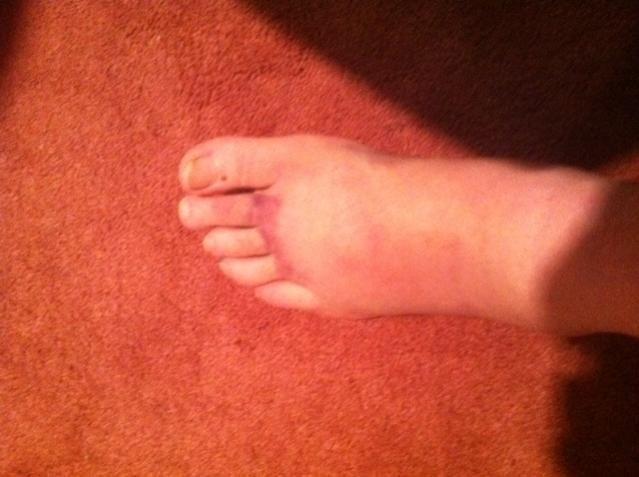 l foot.jpg